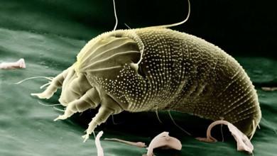 Milben im Bett - Ausschlag und Allergie nicht selten als Folge